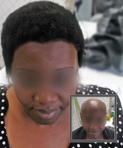 Hair Loss Treatments in Johannesburg by Hair Clinic International