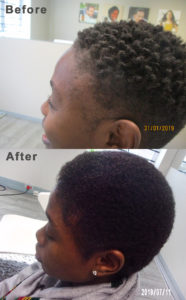 Hair Restoration Therapy